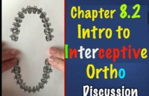 Ch8.2 Mechanics Intro to Intercept Ortho