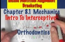 8.1 Mechanics: Intro Interceptive Ortho Ch8 #1
