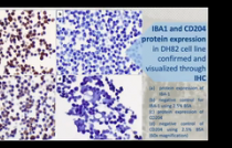 VCS 2020: RNA IN-SITU HYBRIDIZATION AS A MOLECULAR DIAGNOSTIC TECHNIQUE TARGETING IBA-1 AND CD204 IN CANINE HISTIOCYTIC SARCOMA