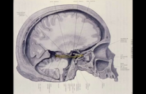 Fourth Nerve Palsies